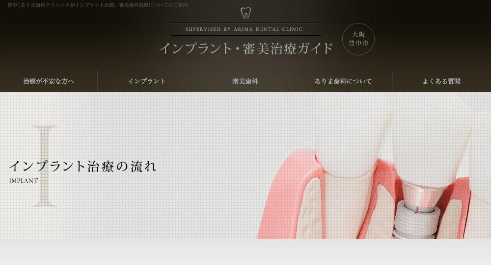 インプラント・審美歯科ガイド
